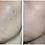 Thumbnail: Rohto Mentholatum Melano CC Intensive Anti-Spot Essence