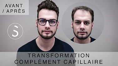 Découvrez en vidéo le complément capillaire de Nicolas. BYSIX.