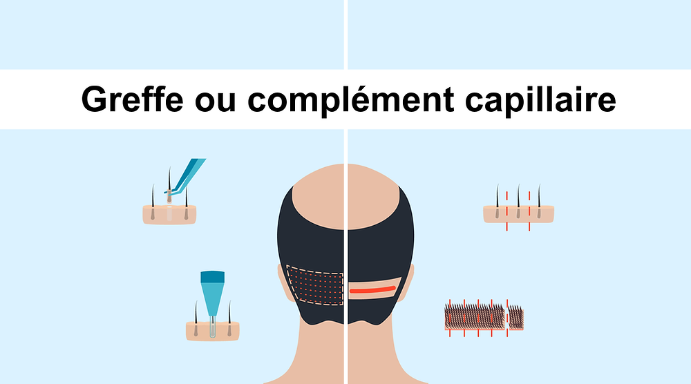implants capillaires la solution