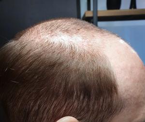 repousse de cheveux, complément capillaire