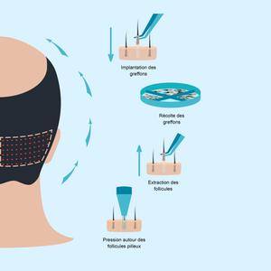 implants capillaires FUE