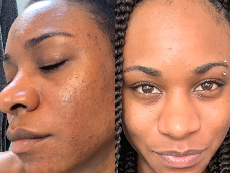 Adult Acne: My First Microdermabrasion Facial