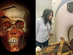 סריקת CT חשפה את נסיבות מותו של פרעה מצרי לפני 3500 שנה