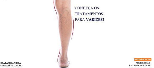 TratamentosVarizes.jpg