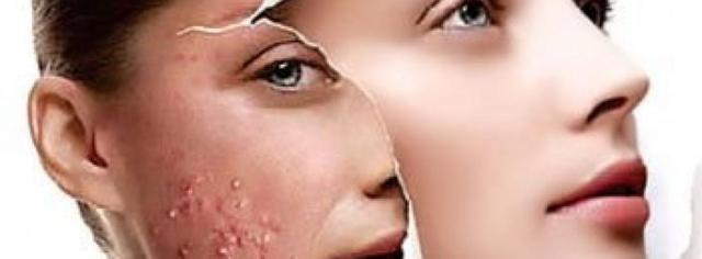 Onzuivere huid & Acne