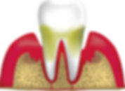 advanced-periodontitis.jpg