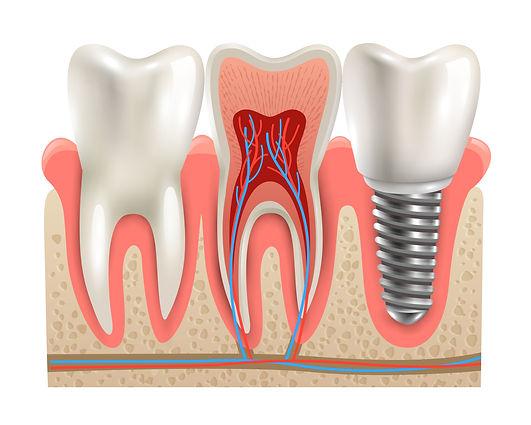 השתלת שיניים בזאלית ביום אחד