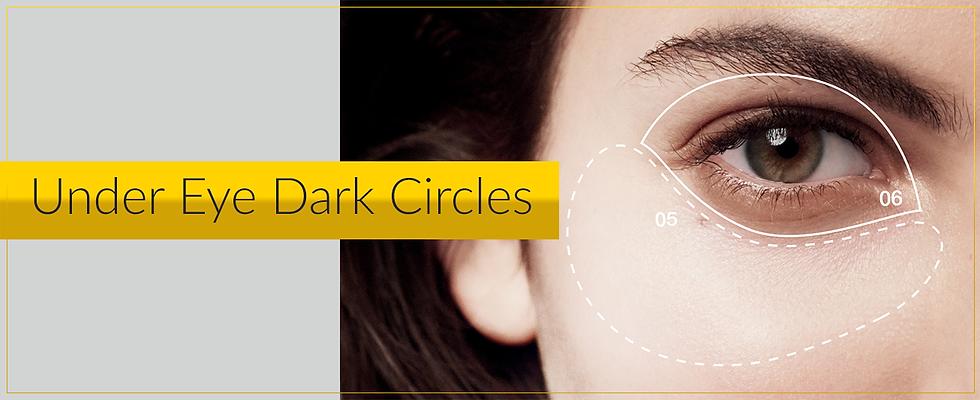 eye dark circles.png