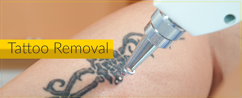Tattoo Removal.png