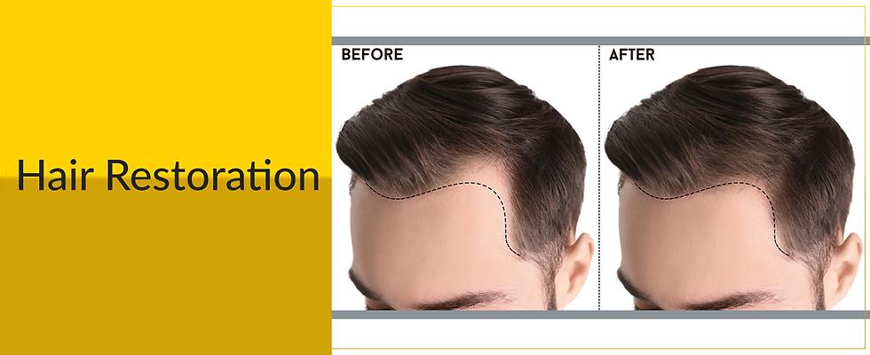 Hair Restoration.png