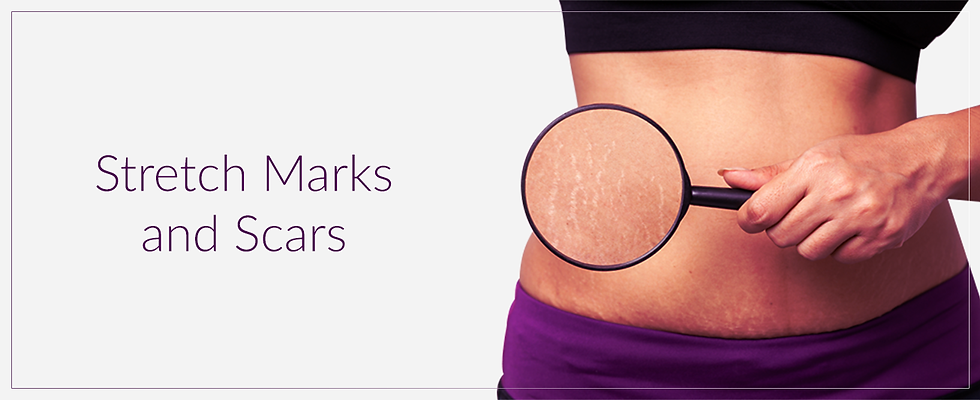 Stretch Marks.png
