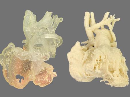 Simulación a medida en cirugía pediátrica: Drenaje venoso pulmonar anómalo