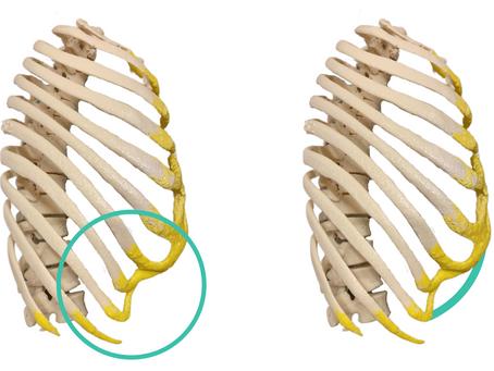 Deformación Costal: Biomodelo 3D que aumenta la seguridad de la cirugía