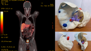 Modelling and 3D printing for complex liver surgery