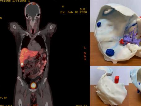 Modelización e impresión 3D para cirugía hepática compleja
