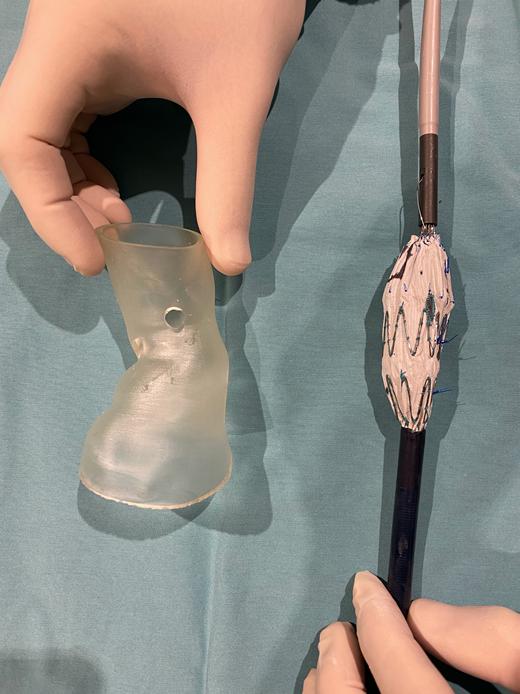 Modelo 3D+Endoprótesis marcada