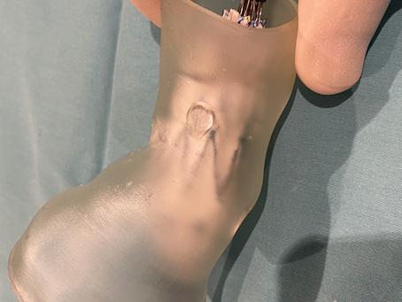 Endoprótesis vasculares a medida con impresión 3D