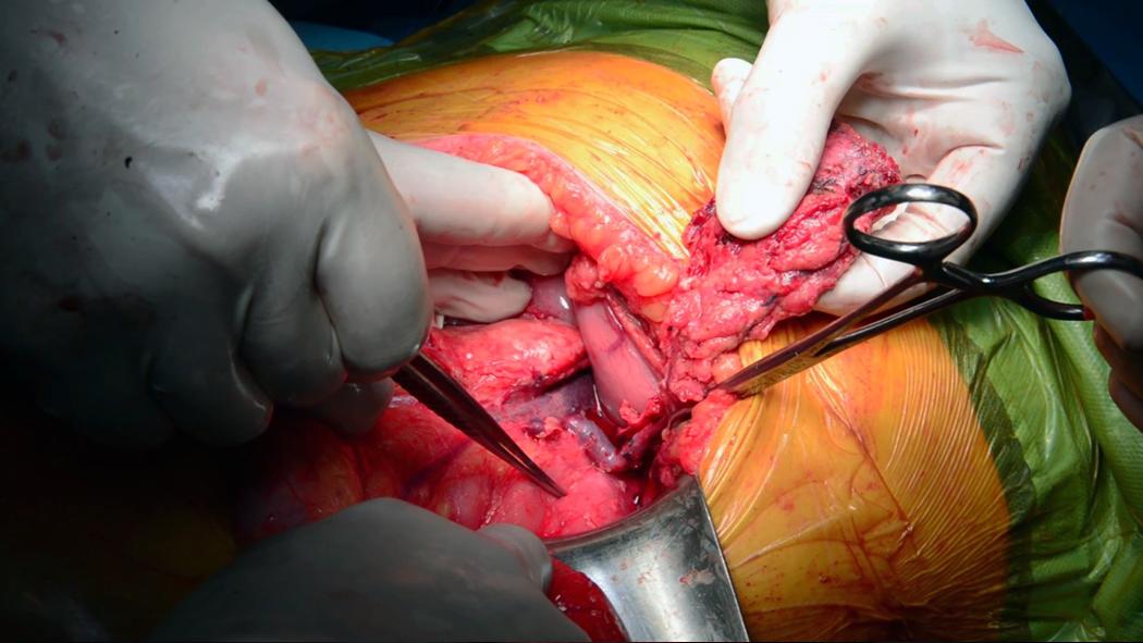 Cirugía. Resección tumor