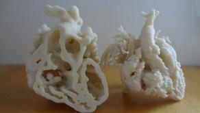 3D en cardiopatías congénitas: Doble salida de ventrículo derecho