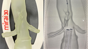 Simulation in vascular surgery: 3D training for catheterisation
