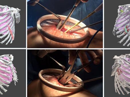 Fracturas bilaterales de tórax con tecnología 3D y técnica quirúrgica MARF