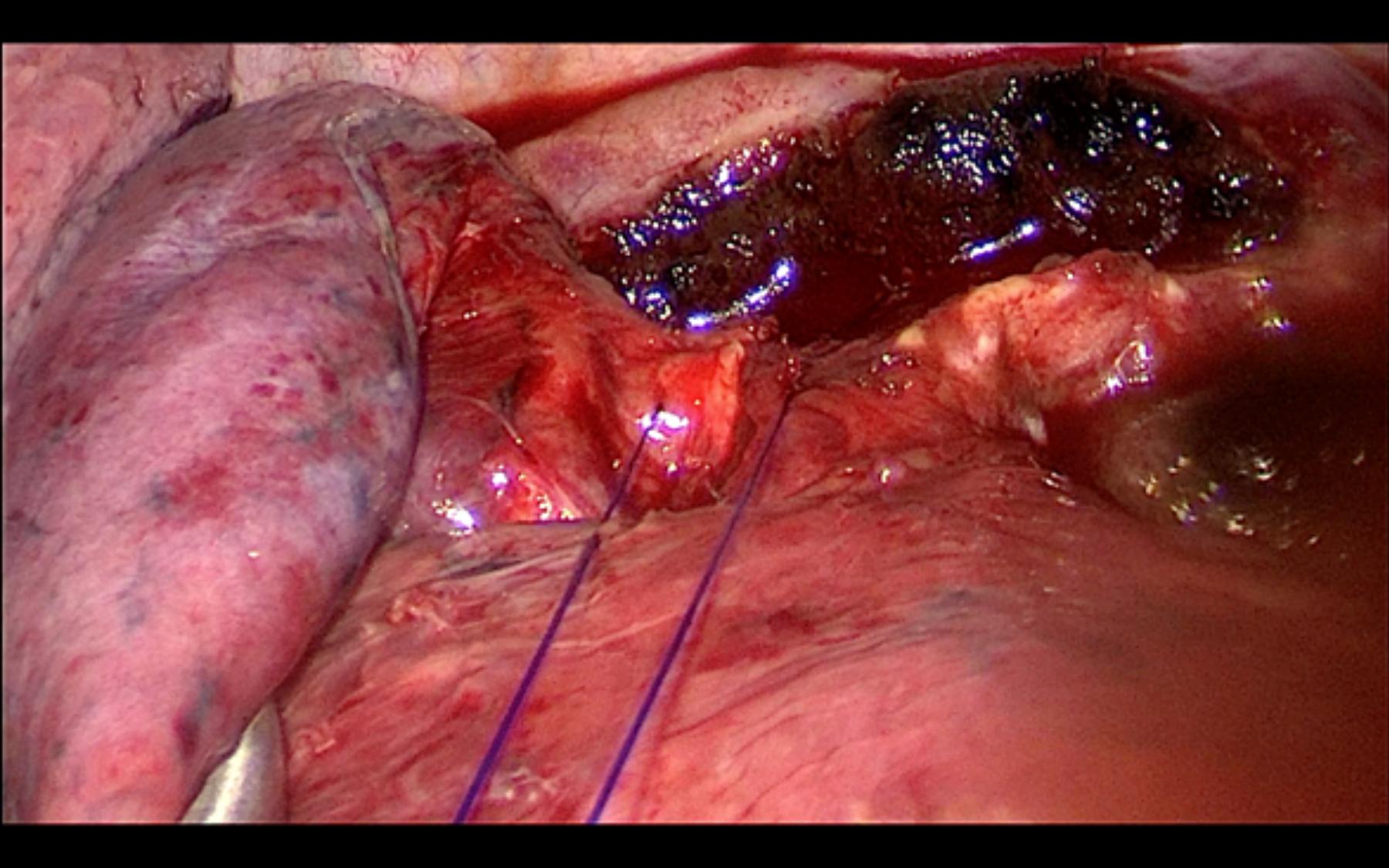 Cirugía - Resección finalizada