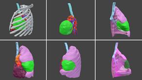 Toracoscopias guiadas con modelos 3D