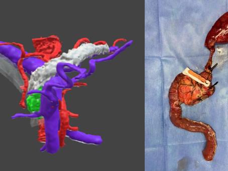 ¿Qué beneficios ofrecen las tecnologías 3D para resecar tumores en páncreas?