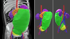 Planificación 3D virtual en cirugías multiviscerales por tumores gigantes