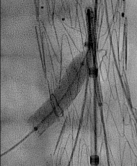Colocación de stent renal dcha