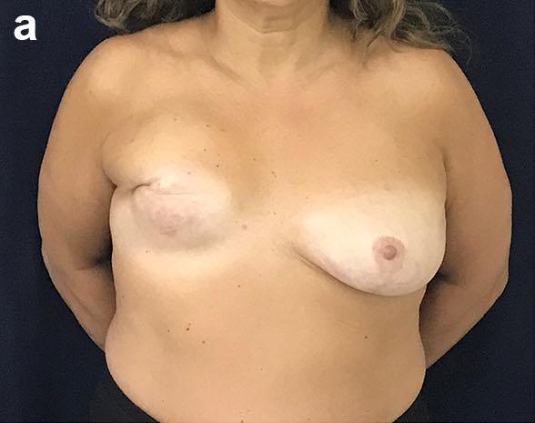 Paciente con la mastectomía realizada