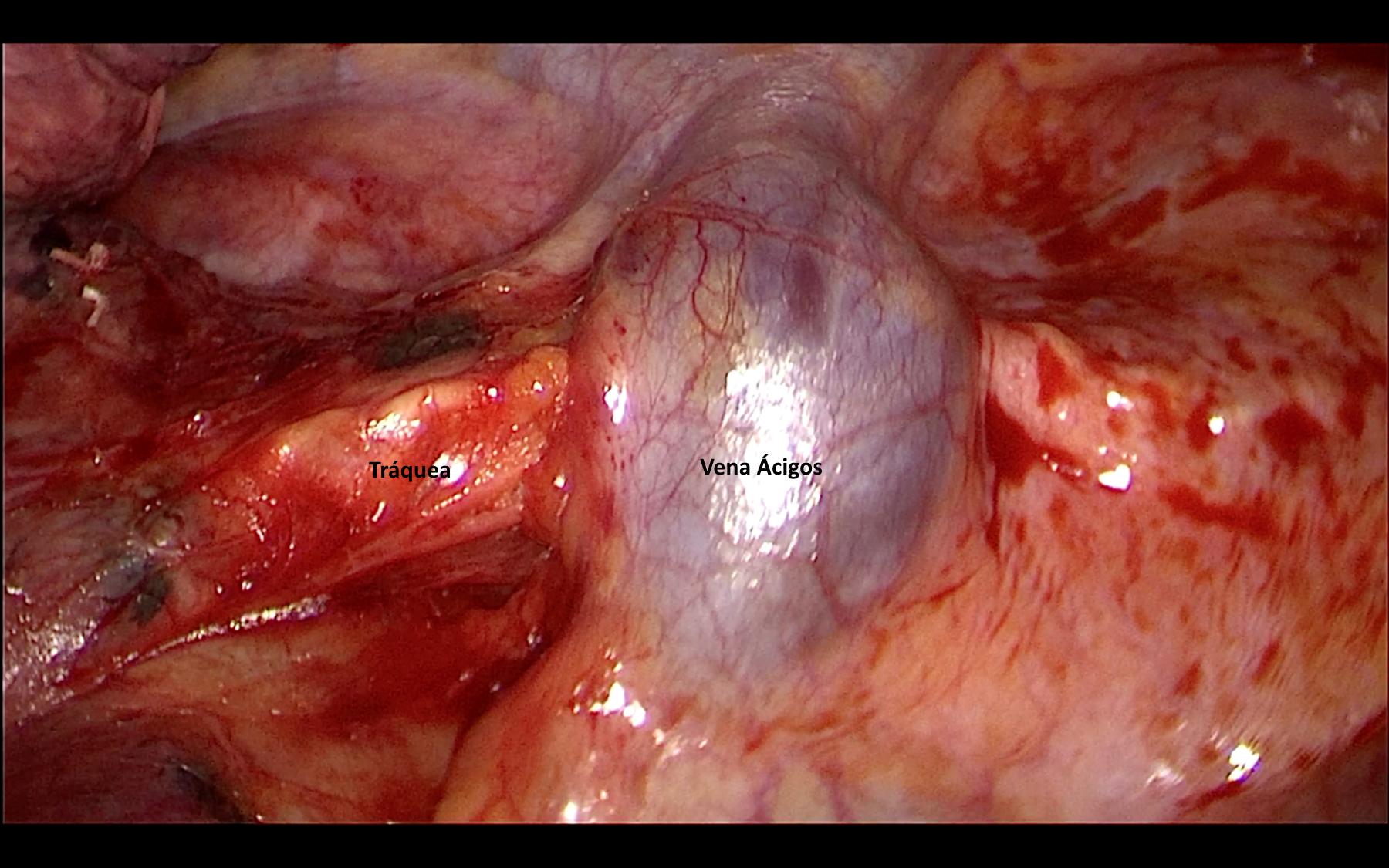 Cirugía - Zona tumor