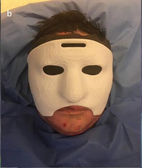Paciente con la máscara