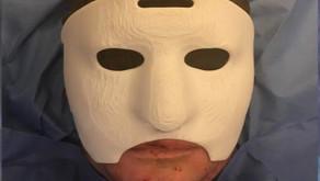 Reconstrucción facial con máscara 3D para paciente quemado