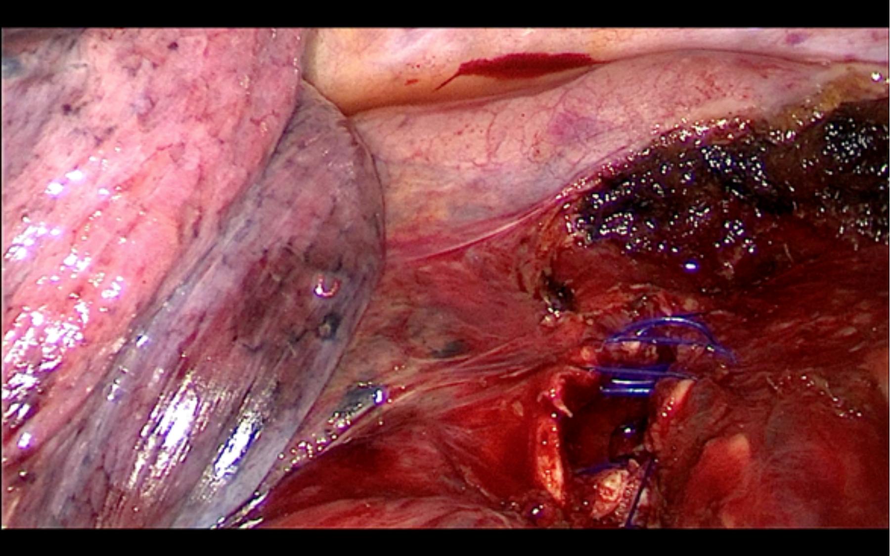 Cirugía - Sutura de la zona