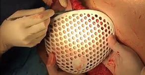 Moldes 3D para reconstrucción mamaria autóloga