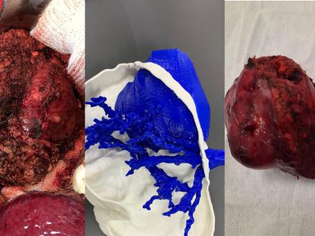 Tumor hepático con modelos 3D: un GPS dentro del quirófano