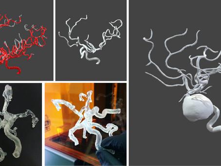 Navegación neurovascular 3D: Aneurismas cerebrales