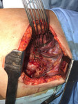 Intervención: tumor extraído