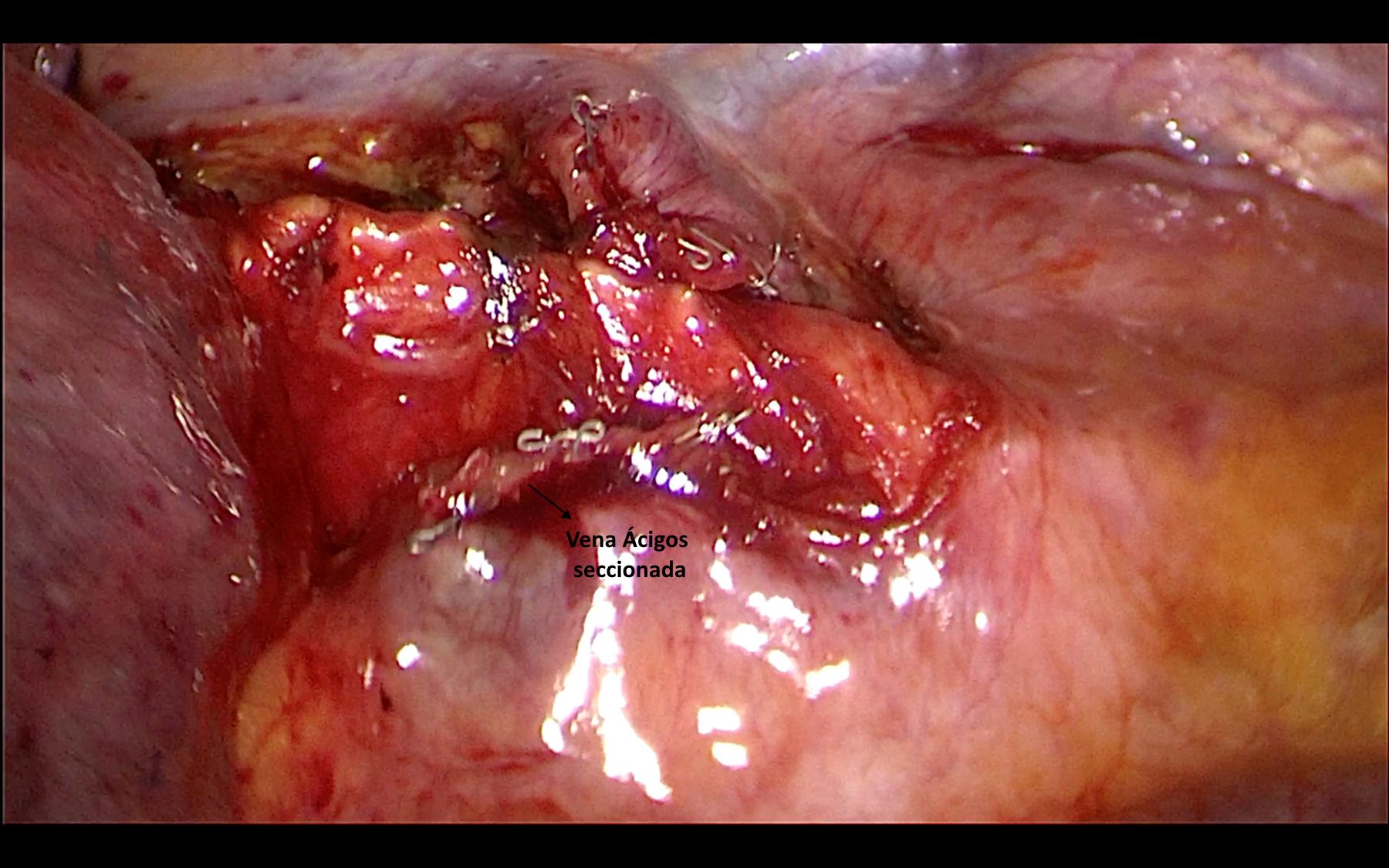 Cirugía - Sección de V. Ácigos