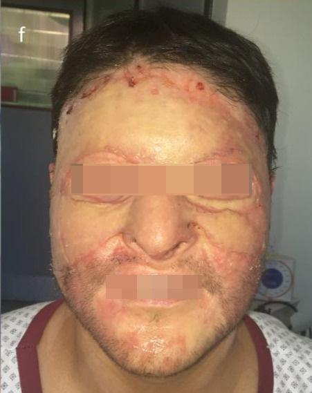 Postoperatorio - 4 meses