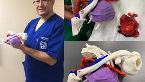 Excéresis de lipoma torácico: planificación virtual combinada con biomodelos 3D
