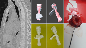 3D surgical planning for tracheal stenosis treatment