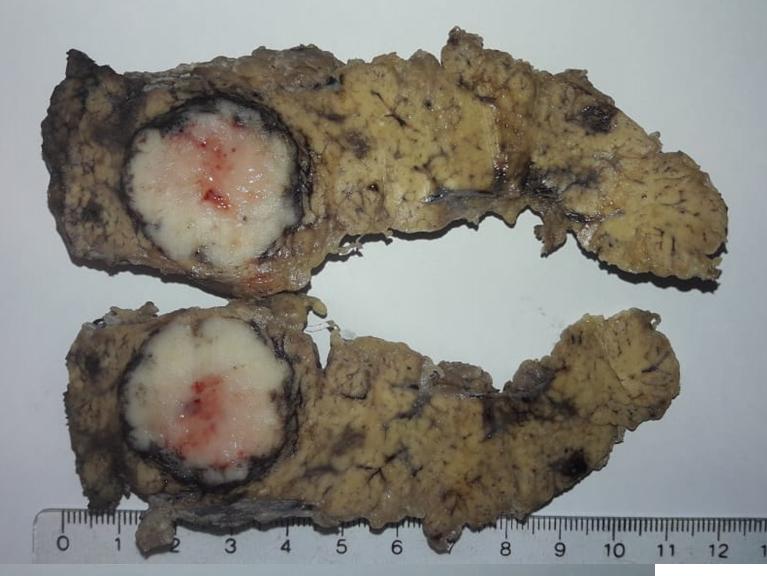 Anatomía patológica. Tumor pancreático. Páncreas