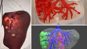 Resección de tumores hepáticos con biomodelos 3D