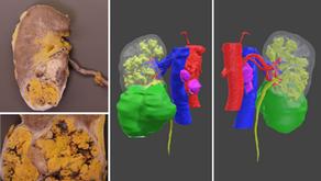 Urología 3D: Nefrectomía y linfadenectomía guiadas con biomodelos