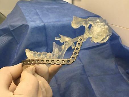 Cabeza y cuello: Reconstrucción de maxilar inferior