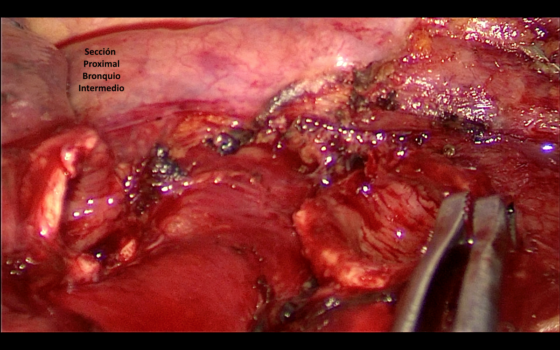 Cirugía - Resección realizada