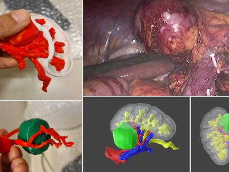Uro-oncología 3D: Resección de tumor hiliar