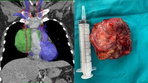 Timectomía radical con planificación quirúrgica virtual 3D